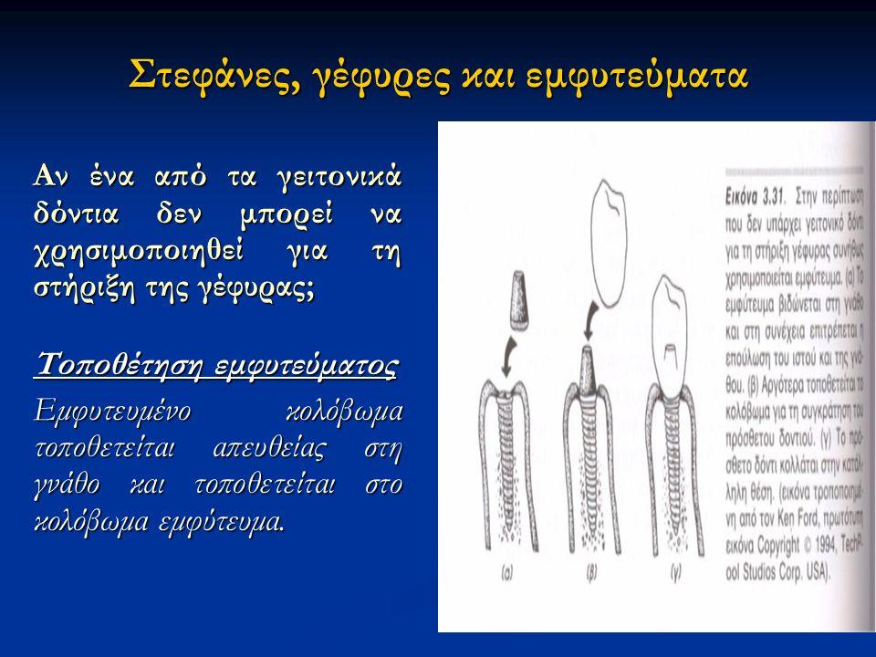 Στεφάνες, γέφυρες και εμφυτεύματα Αν ένα από τα γειτονικά δόντια δεν μπορεί να χρησιμοποιηθεί για τη στήριξη της γέφυρας; Τοποθέτηση εμφυτεύματος Εμφυτευμένο κολόβωμα τοποθετείται απευθείας στη γνάθο και τοποθετείται στο κολόβωμα εμφύτευμα.