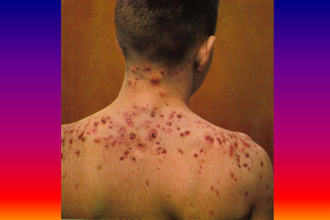 Clostridium tetaniClostridium tetani Στα κόπρανα των ζώων σπάνια του ανθρώπου και είναι πολύ ανθεκτικό λόγο της παραγωγής σπόρωνΣτα κόπρανα των ζώων σπάνια του ανθρώπου και είναι πολύ ανθεκτικό λόγο της παραγωγής σπόρων Χρόνος επώασης 6-15 μέρες ή και 30 μέρεςΧρόνος επώασης 6-15 μέρες ή και 30 μέρες 100% προφύλαξη με τον εμβολιασμό100% προφύλαξη με τον εμβολιασμό Στις ΗΠΑ 100 άτομα πεθαίνουν κάθε χρόνοΣτις ΗΠΑ 100 άτομα πεθαίνουν κάθε χρόνο