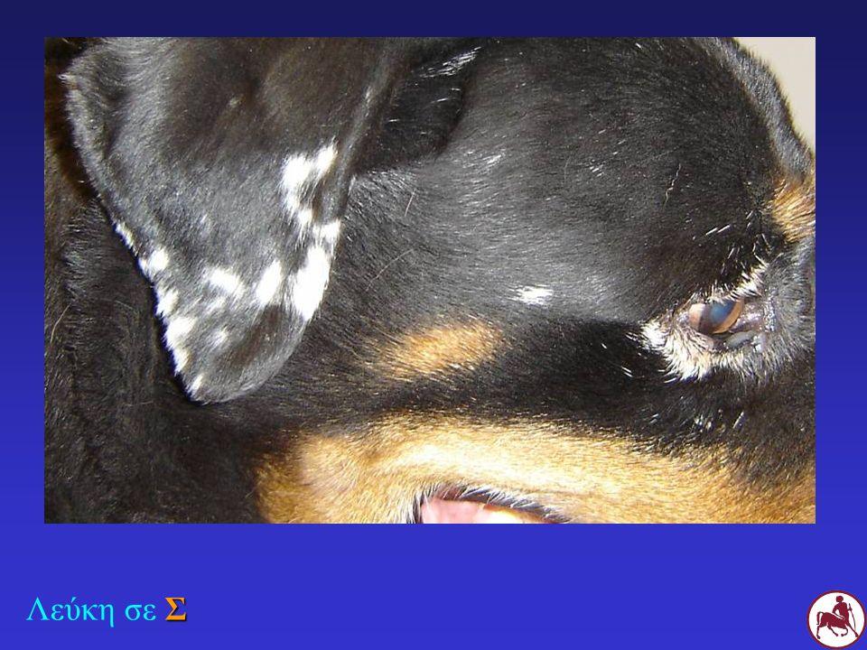 Σ Αποχρωματισμός του ακρορρινίου σε Σ με φυλλώδη πέμφιγα