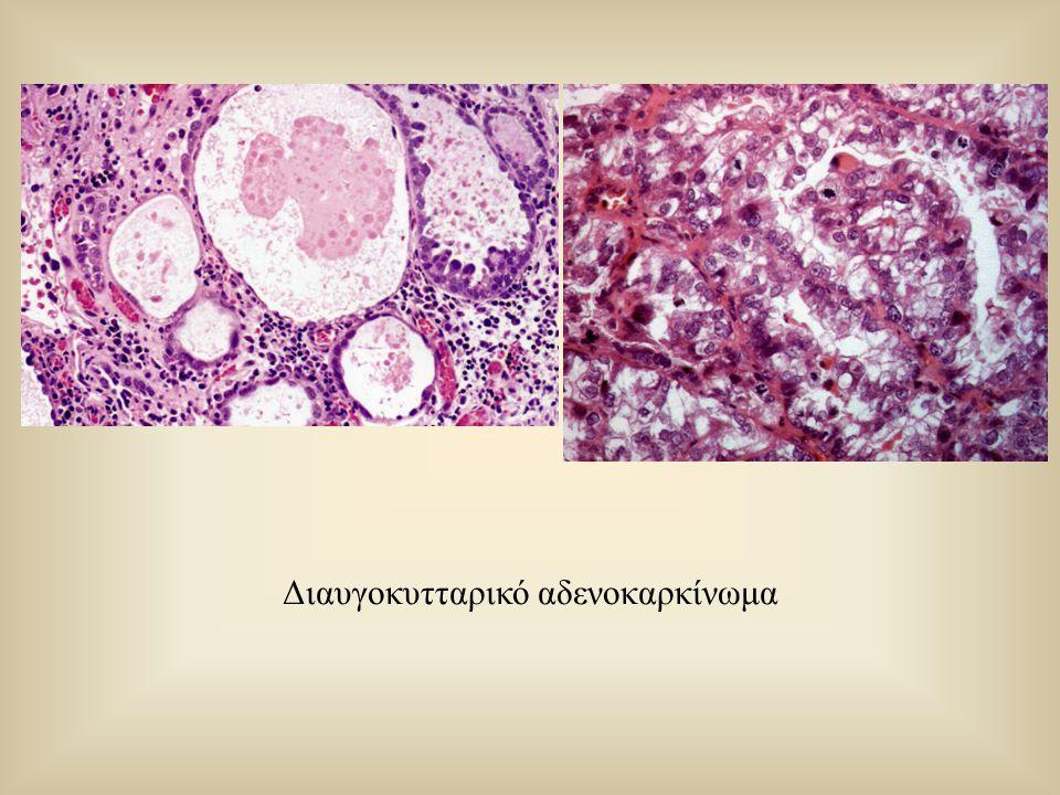 Διαυγοκυτταρικό αδενοκαρκίνωμα