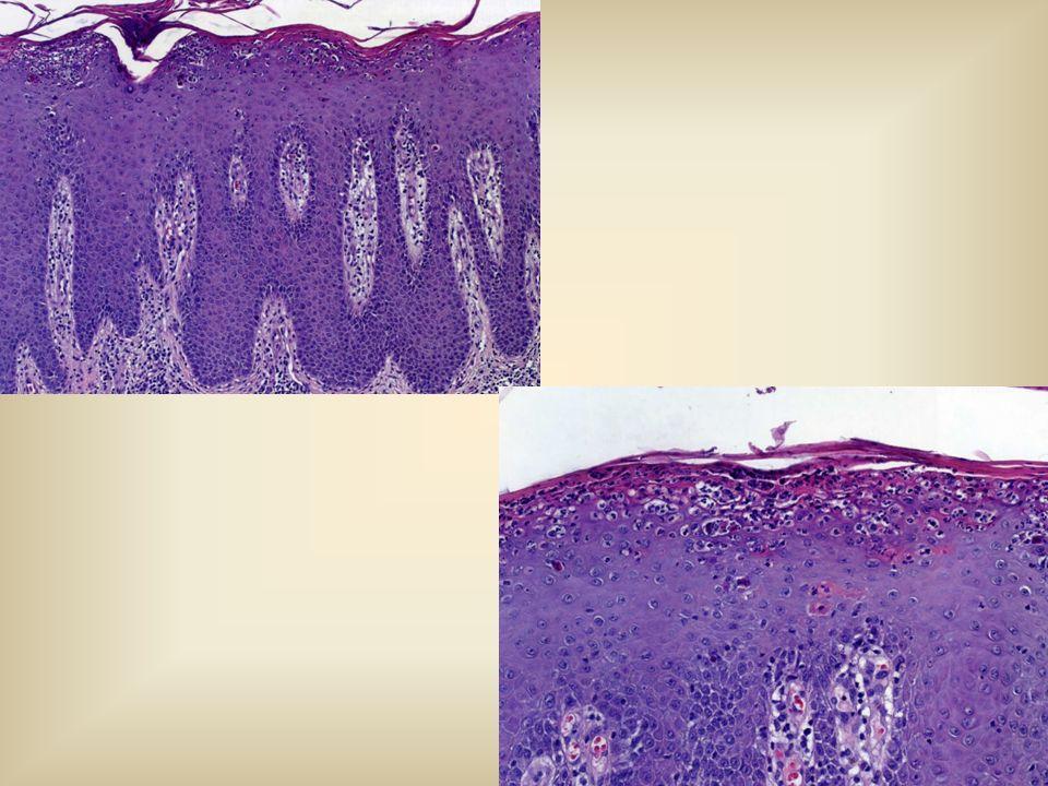 ΜΙΚΡΟΣΚΟΠΙΚΗ ΕΙΚΟΝΑ Κλασσική VIN: - Κονδυλωματώδης - «Μπαζαλοειδής» - Βasaloid Πάχυνση του επιθηλίου με υπερκεράτωση και παρακεράτωση Απώλεια της ωρίμανσης του επιθηλίου, δυσκεράτωση Πυρηνική πολυμορφία, ανώμαλες και πολυάριθμες μιτώσεις Συμμετοχή των σμηγματογόνων αδένων, των βαρθολινείων αδένων και των τριχοθυλακίων