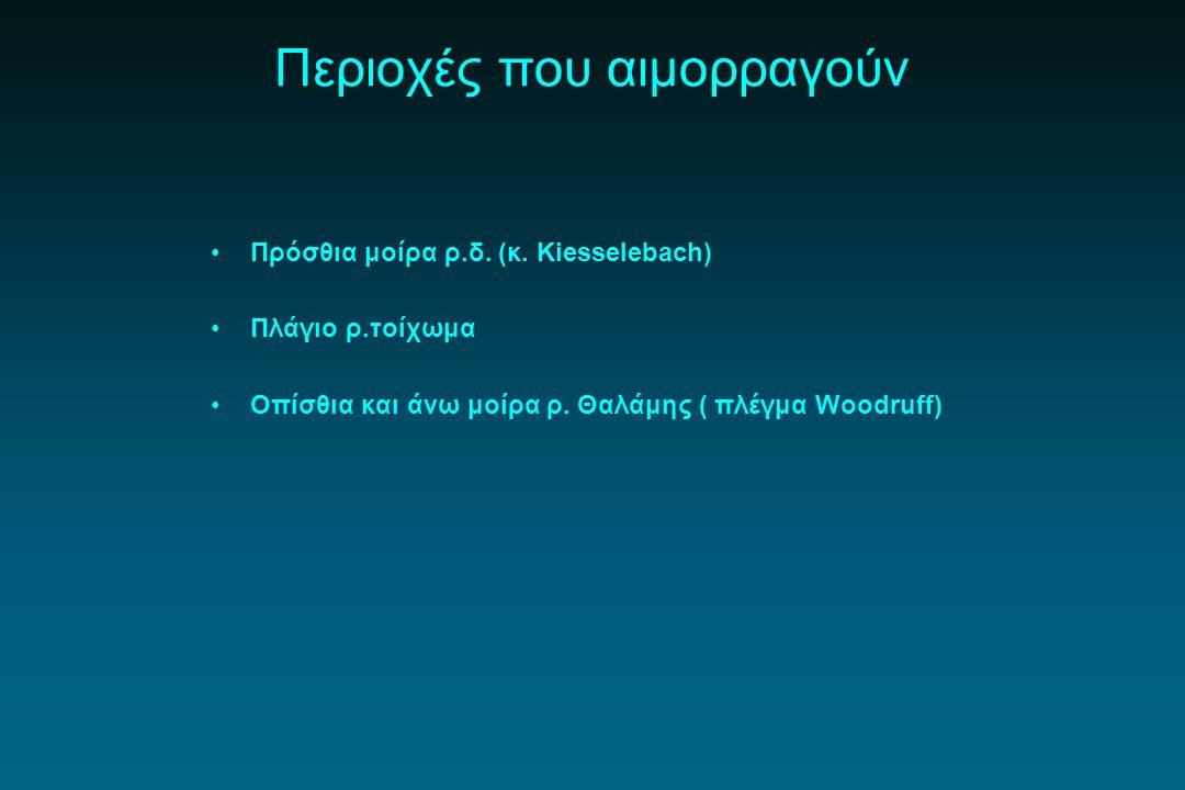 Περιοχές που αιμορραγούν Πρόσθια μοίρα ρ.δ. (κ. Κiesselebach) Πλάγιο ρ.τοίχωμα Οπίσθια και άνω μοίρα ρ. Θαλάμης ( πλέγμα Woodruff)