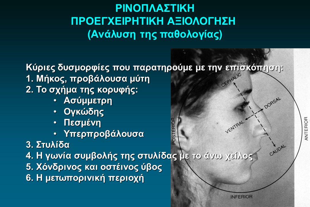 ΡΙΝΟΠΛΑΣΤΙΚΗ ΠΡΟΕΓΧΕΙΡΗΤΙΚΗ ΑΞΙΟΛΟΓΗΣΗ (Ανάλυση της παθολογίας) Κύριες δυσμορφίες που παρατηρούμε με την επισκόπηση: 1.Μήκος, προβάλουσα μύτη 2.Το σχή