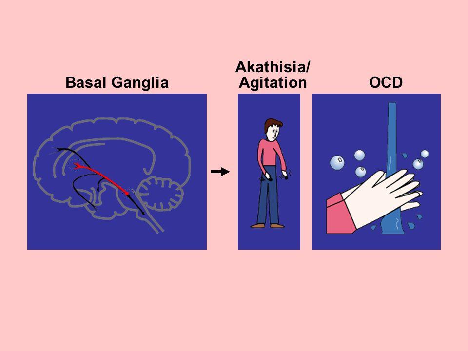 Basal Ganglia OCD Akathisia/ Agitation