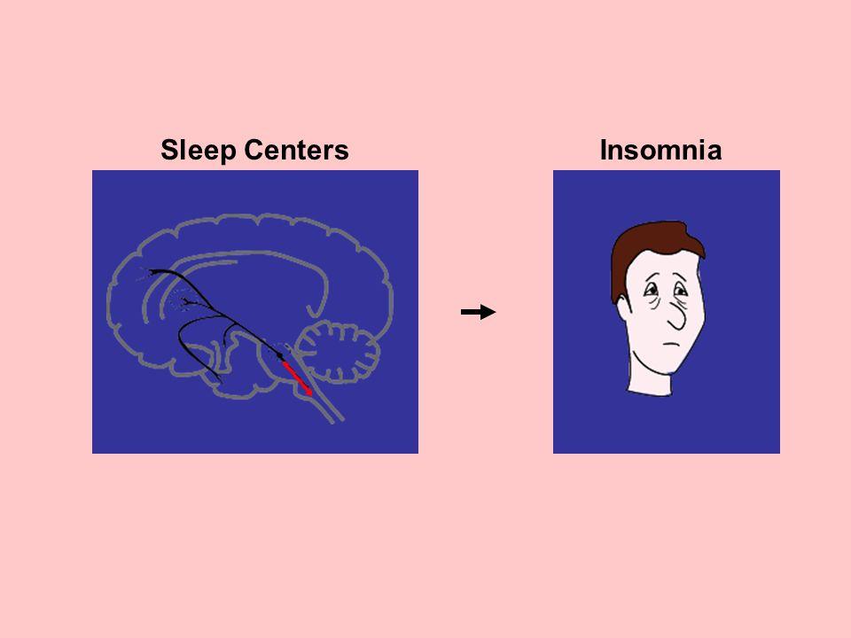Sleep CentersInsomnia