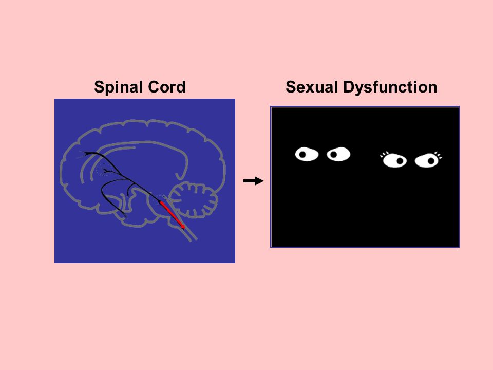 Spinal CordSexual Dysfunction