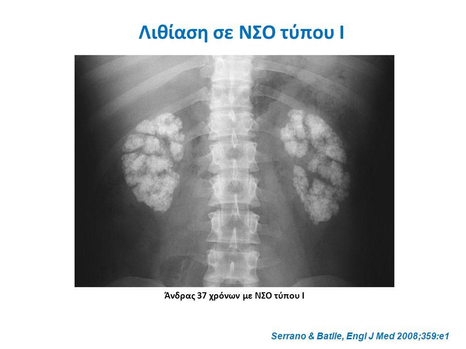 Serrano & Batlle, Engl J Med 2008;359:e1 Άνδρας 37 χρόνων με ΝΣΟ τύπου Ι Λιθίαση σε ΝΣΟ τύπου Ι