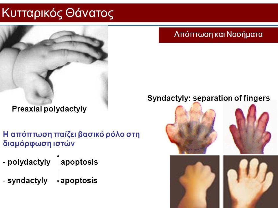 Η απόπτωση παίζει βασικό ρόλο στη διαμόρφωση ιστών - polydactyly apoptosis - syndactyly apoptosis Κυτταρικός Θάνατος Απόπτωση και Νοσήματα Preaxial po