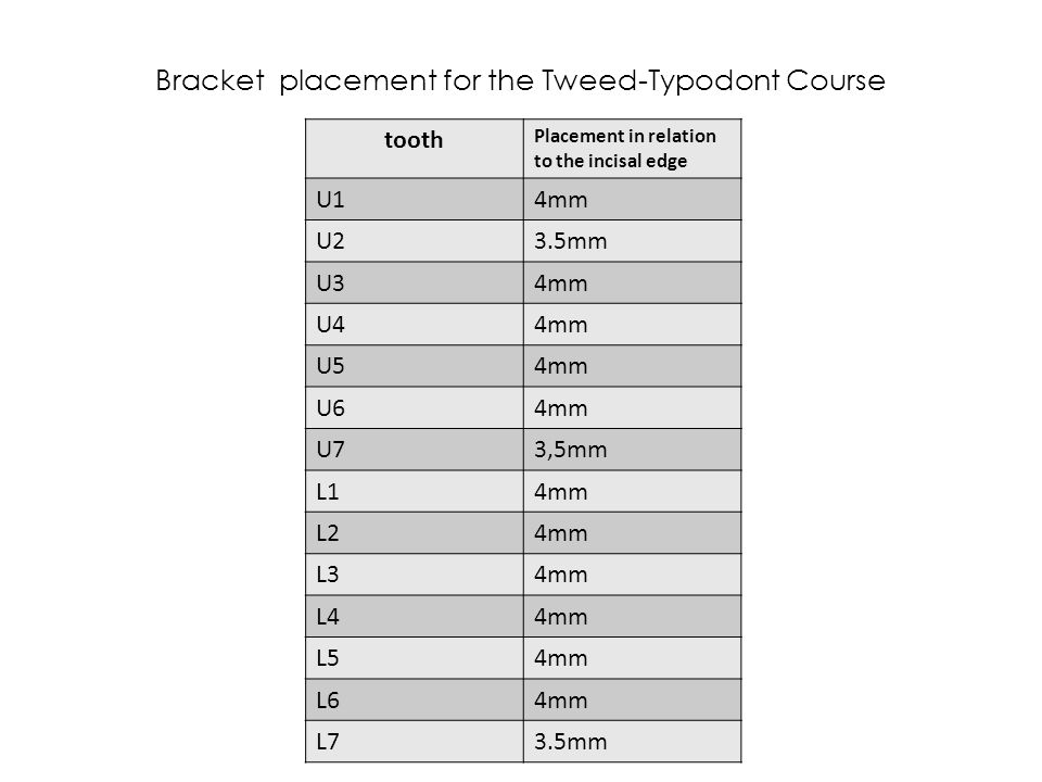 Bracket placement for the Tweed-Typodont Course tooth Placement in relation to the incisal edge U14mm U23.5mm U34mm U44mm U54mm U64mm U73,5mm L14mm L2