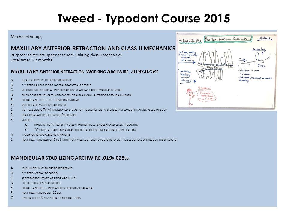 Mechanotherapy MAXILLARY ANTERIOR RETRACTION AND CLASS II MECHANICS purpose: to retract upper anteriors utilizing class II mechanics Total time: 1-2 m