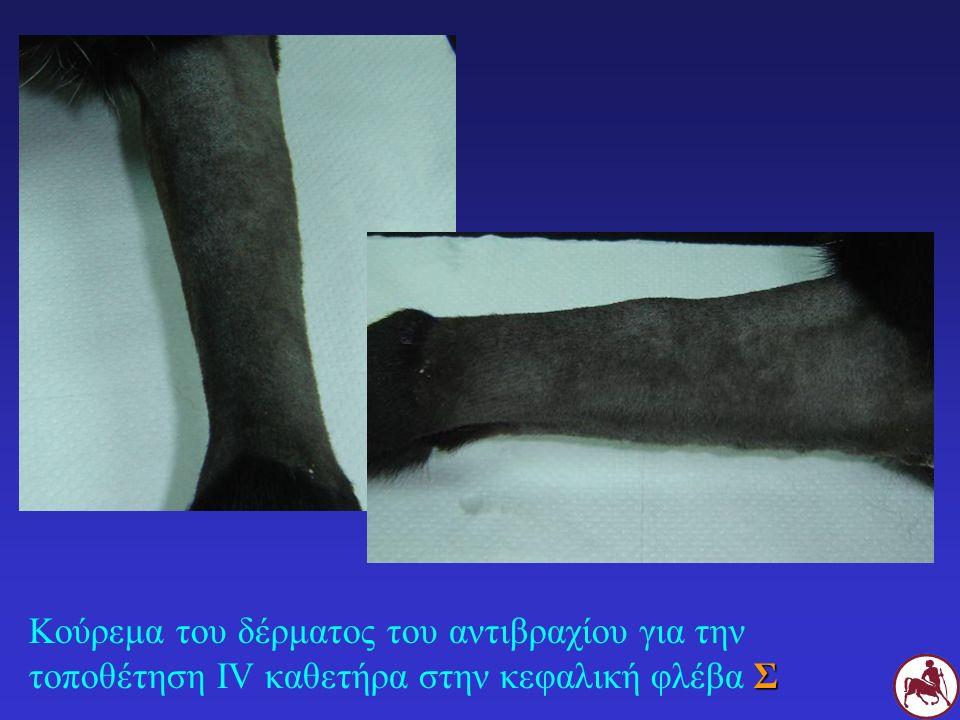 Σ Κούρεμα του δέρματος του αντιβραχίου για την τοποθέτηση IV καθετήρα στην κεφαλική φλέβα Σ