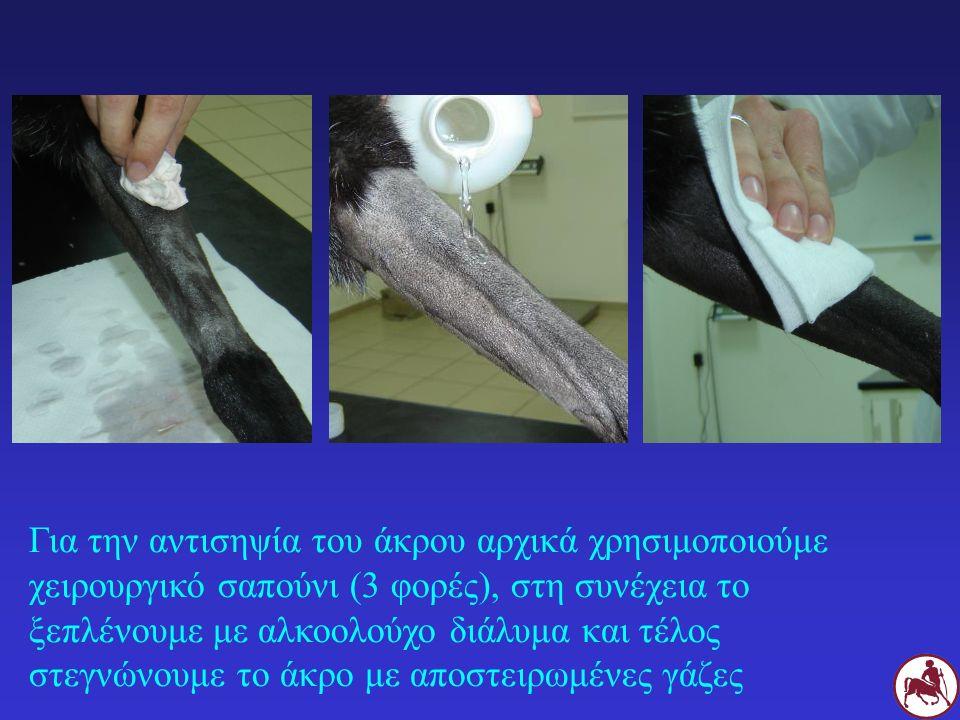Για την αντισηψία του άκρου αρχικά χρησιμοποιούμε χειρουργικό σαπούνι (3 φορές), στη συνέχεια το ξεπλένουμε με αλκοολούχο διάλυμα και τέλος στεγνώνουμ