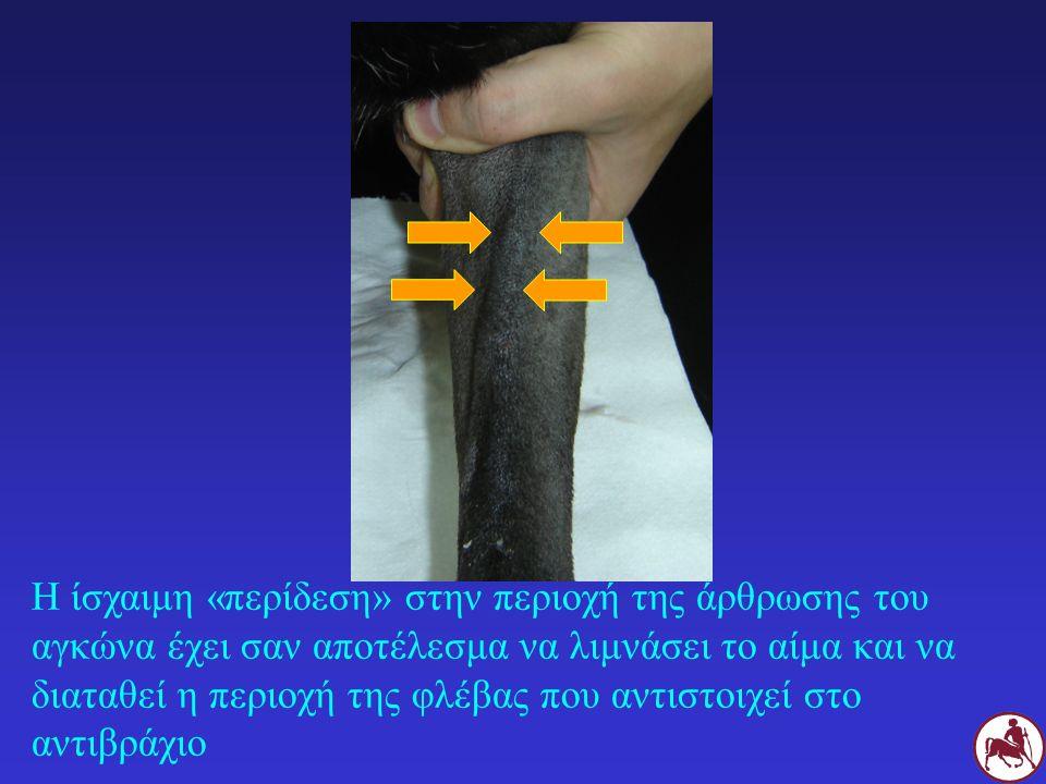 Η ίσχαιμη «περίδεση» στην περιοχή της άρθρωσης του αγκώνα έχει σαν αποτέλεσμα να λιμνάσει το αίμα και να διαταθεί η περιοχή της φλέβας που αντιστοιχεί