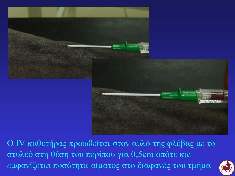 Ο IV καθετήρας προωθείται στον αυλό της φλέβας με το στυλεό στη θέση του περίπου για 0,5cm οπότε και εμφανίζεται ποσότητα αίματος στο διαφανές του τμή