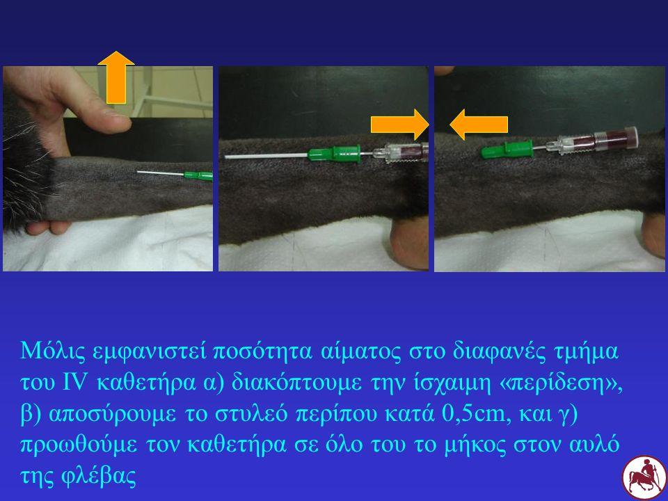 Μόλις εμφανιστεί ποσότητα αίματος στο διαφανές τμήμα του IV καθετήρα α) διακόπτουμε την ίσχαιμη «περίδεση», β) αποσύρουμε το στυλεό περίπου κατά 0,5cm