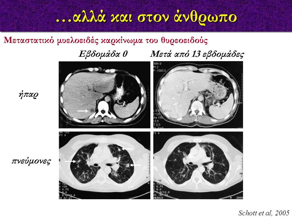…αλλά και στον άνθρωπο Schott et al, 2005 Μεταστατικό μυελοειδές καρκίνωμα του θυρεοειδούς ήπαρ πνεύμονες Εβδομάδα 0 Μετά από 13 εβδομάδες