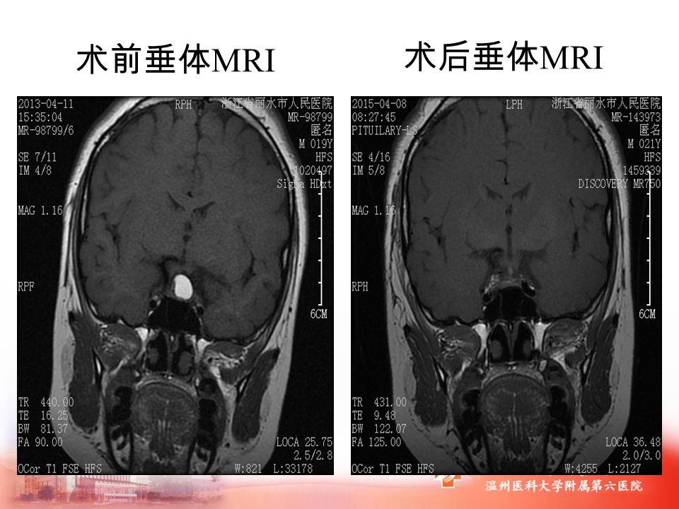 术前垂体 MRI 术后垂体 MRI