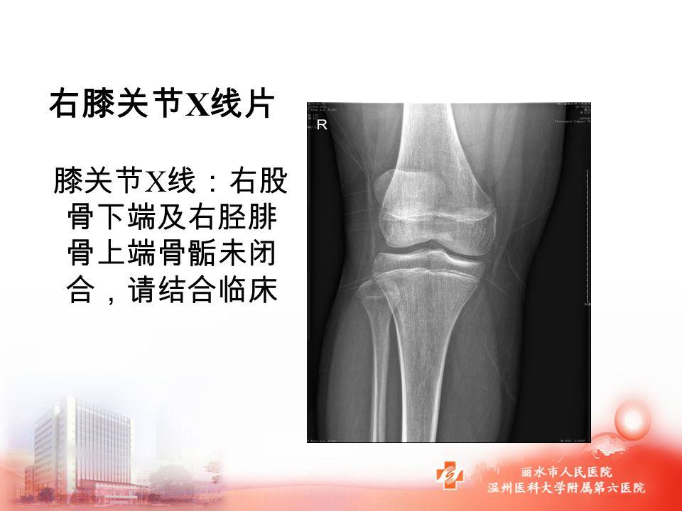 右膝关节 X 线片 膝关节 X 线:右股 骨下端及右胫腓 骨上端骨骺未闭 合,请结合临床