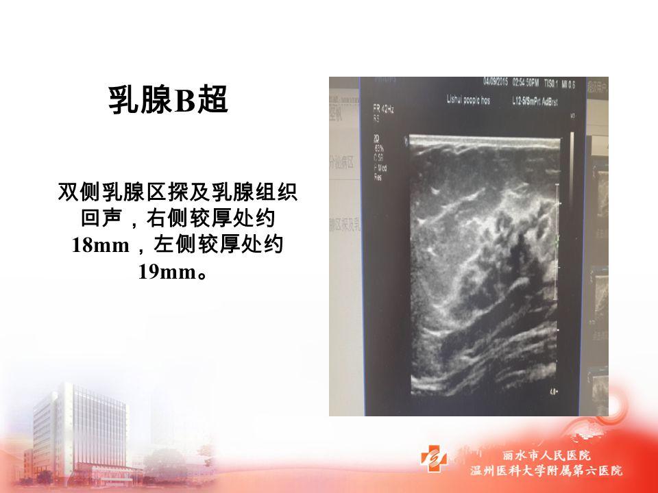 乳腺 B 超 双侧乳腺区探及乳腺组织 回声,右侧较厚处约 18mm ,左侧较厚处约 19mm 。
