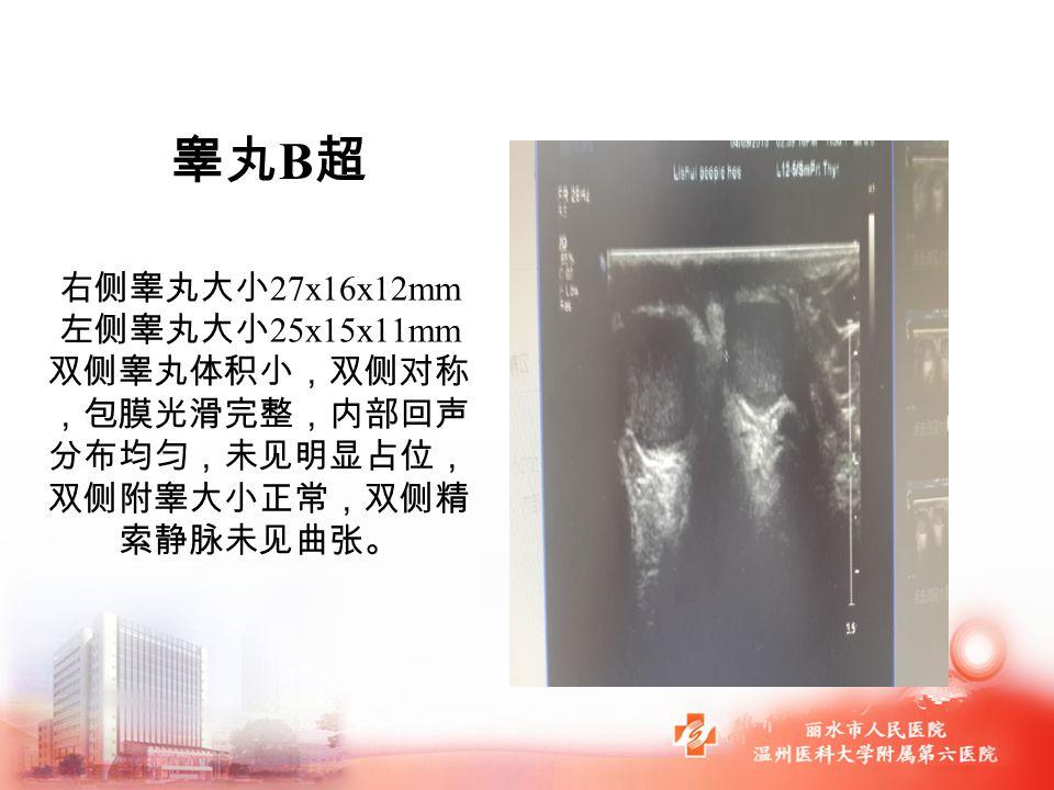 右侧睾丸大小 27x16x12mm 左侧睾丸大小 25x15x11mm 双侧睾丸体积小,双侧对称 ,包膜光滑完整,内部回声 分布均匀,未见明显占位, 双侧附睾大小正常,双侧精 索静脉未见曲张。 睾丸 B 超