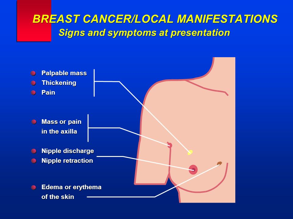 Palpable mass ThickeningPain Mass or pain in the axilla Nipple discharge Nipple retraction Edema or erythema of the skin BREAST CANCER/LOCAL MANIFESTA