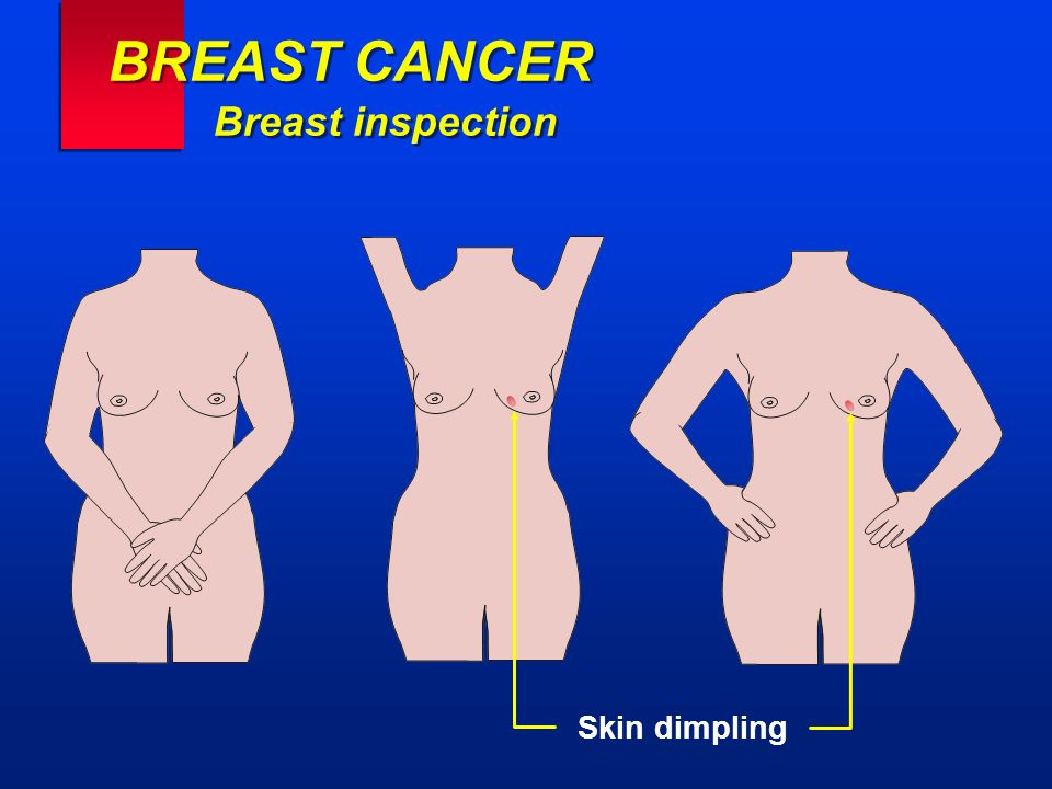 BREAST CANCER Breast inspection Skin dimpling