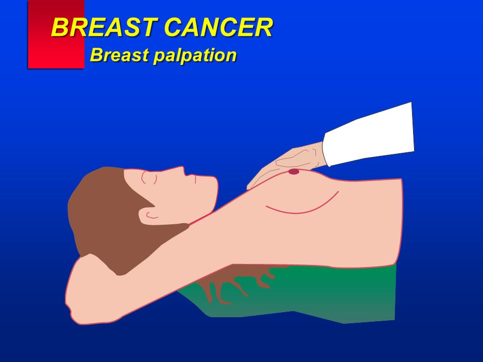 BREAST CANCER Breast palpation