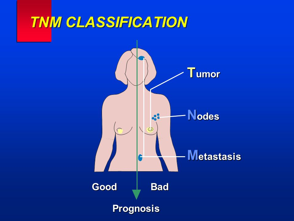TNM CLASSIFICATION T umor N odes M etastasis Good Bad Prognosis