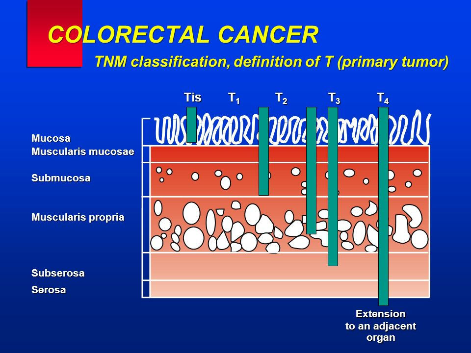 COLORECTAL CANCER TNM classification, definition of T (primary tumor) TisT 1 T 2 T 3 T 4 Extension to an adjacent organ Mucosa Muscularis mucosae Subm