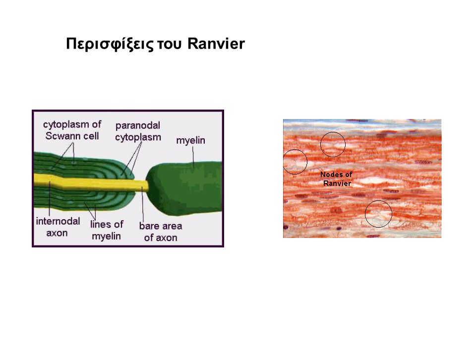 Περισφίξεις του Ranvier
