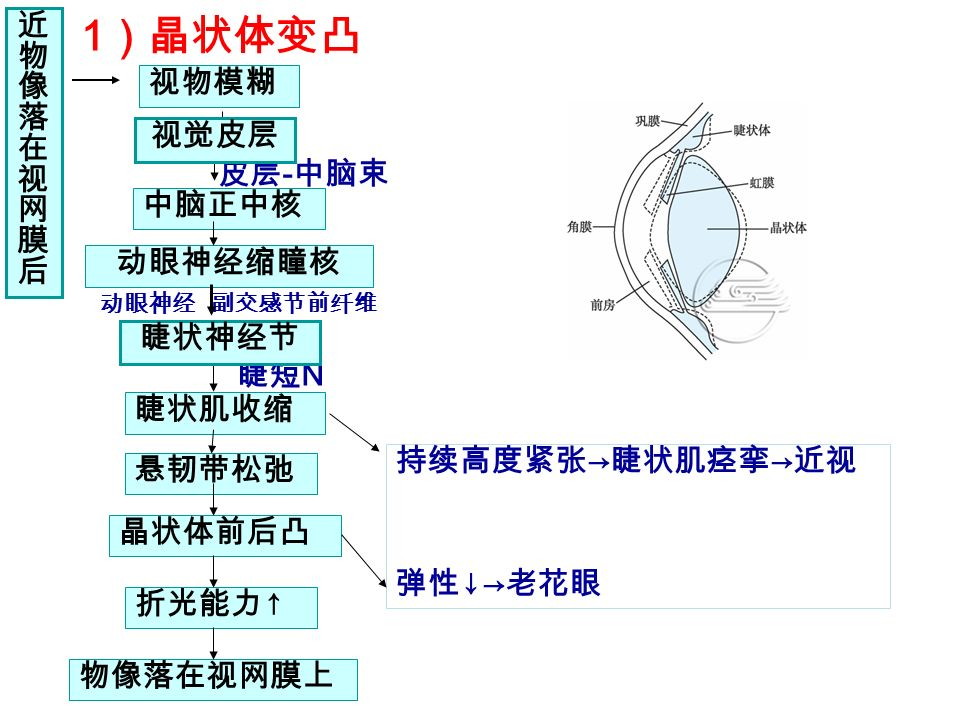 1 )晶状体变凸 调节前后晶状体的变化 持续高度紧张 → 睫状肌痉挛 → 近视 弹性 ↓→ 老花眼 睫短 N 视物模糊 皮层 - 中脑束 中脑正中核 动眼神经缩瞳核 睫状肌收缩 悬韧带松弛 晶状体前后凸 折光能力 ↑ 物像落在视网膜上 近物像落在视网膜后近物像落在视网膜后 视觉皮层 动眼神经 副交感节前纤维 睫状神经节