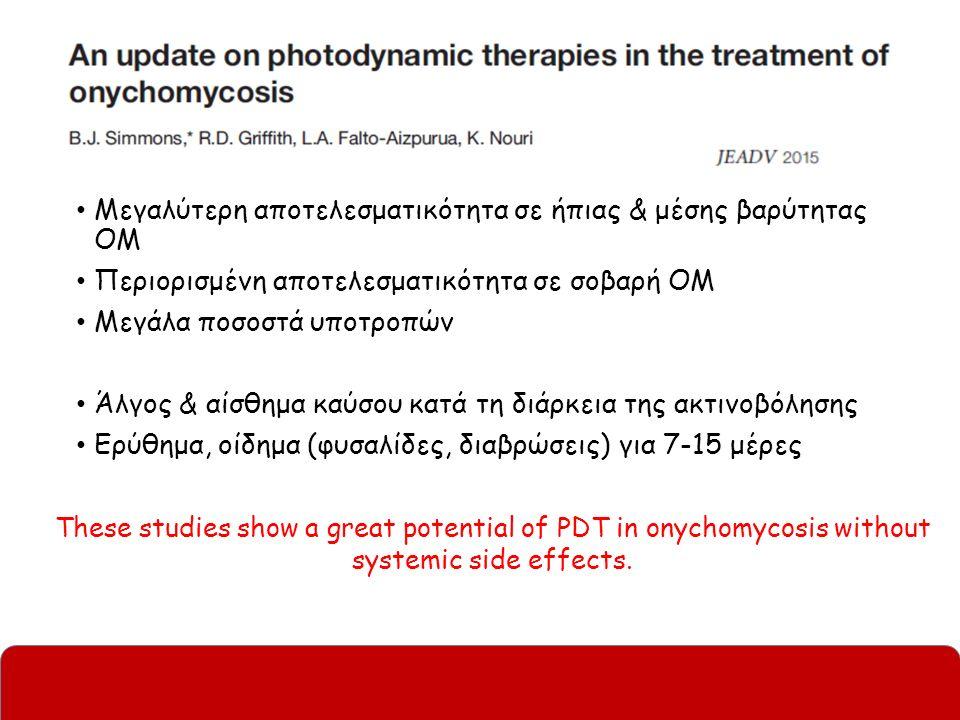 Μεγαλύτερη αποτελεσματικότητα σε ήπιας & μέσης βαρύτητας ΟΜ Περιορισμένη αποτελεσματικότητα σε σοβαρή ΟΜ Μεγάλα ποσοστά υποτροπών Άλγος & αίσθημα καύσου κατά τη διάρκεια της ακτινοβόλησης Ερύθημα, οίδημα (φυσαλίδες, διαβρώσεις) για 7-15 μέρες These studies show a great potential of PDT in onychomycosis without systemic side effects.