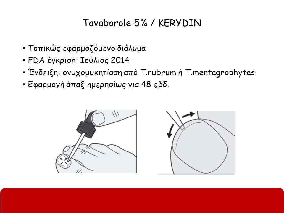 Tavaborole 5% / KERYDIN Τοπικώς εφαρμοζόμενο διάλυμα FDA έγκριση: Ιούλιος 2014 Ένδειξη: ονυχομυκητίαση από T.rubrum ή T.mentagrophytes Εφαρμογή άπαξ η