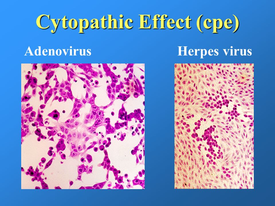 Cytopathic Effect (cpe) AdenovirusHerpes virus