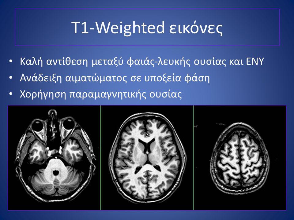 T1-Weighted εικόνες Καλή αντίθεση μεταξύ φαιάς-λευκής ουσίας και ΕΝΥ Ανάδειξη αιματώματος σε υποξεία φάση Χορήγηση παραμαγνητικής ουσίας