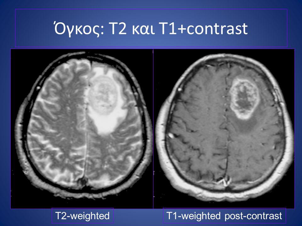 Όγκος: T2 και T1+contrast T2-weightedT1-weighted post-contrast