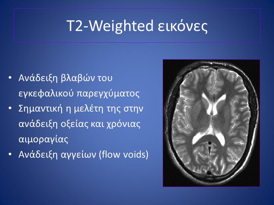 T2-Weighted εικόνες Ανάδειξη βλαβών του εγκεφαλικού παρεγχύματος Σημαντική η μελέτη της στην ανάδειξη οξείας και χρόνιας αιμοραγίας Ανάδειξη αγγείων (