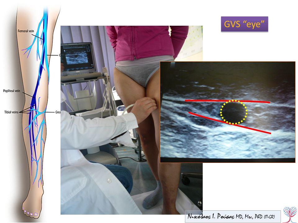 "Bound anteriorly by superficial fascia & posteriorly by deep fascia GVS ""eye"" Νικόλαος Ι. Ρούσας MD, Msc, PhD (IT-GR)"