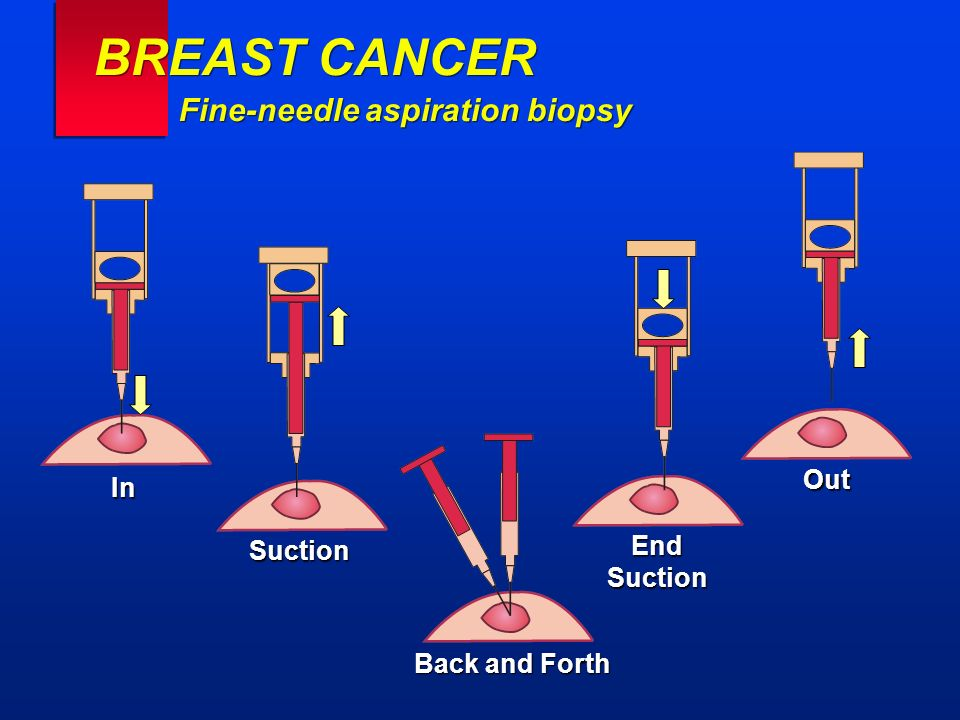 BREAST CANCER Fine-needle aspiration biopsy In Back and Forth EndSuction Suction Out