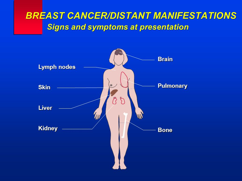Lymph nodes SkinLiverKidney BrainPulmonaryBone BREAST CANCER/DISTANT MANIFESTATIONS Signs and symptoms at presentation