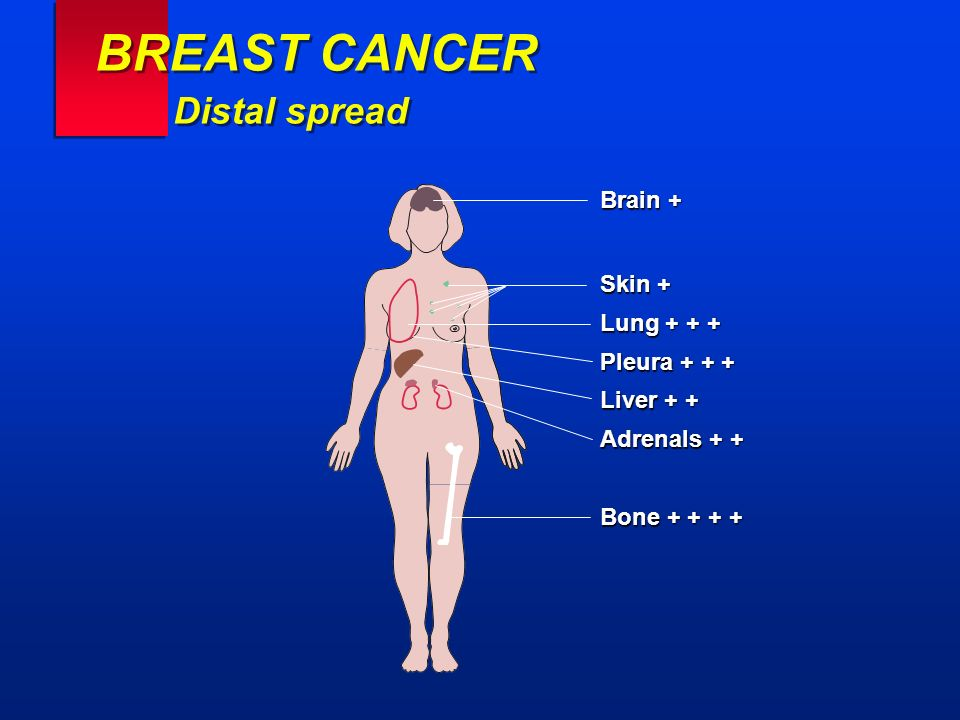 BREAST CANCER Distal spread Brain + Skin + Lung + + + Pleura + + + Liver + + Adrenals + + Bone + + + +