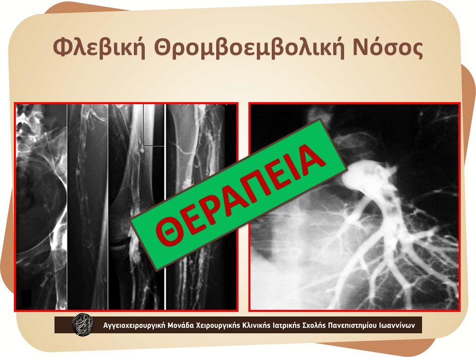 Φλεβική Θρομβοεμβολική Νόσος