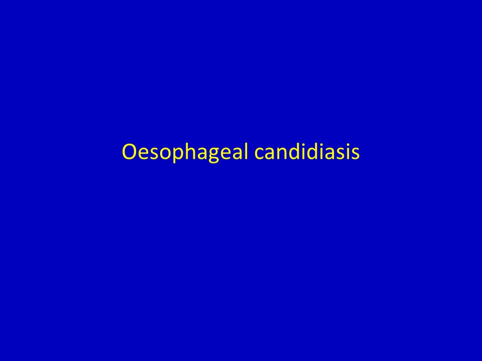 Summary of micafungin clinical data in oesophageal candidiasis Study designComparatorPatientsDoses Key efficacy results Open-label, dose-finding 1 –120 patients with endoscopically proven oesophagitis 12.5–100 mg/dayClear dose– response pattern with improved efficacy at higher doses Randomised, double-blind, dose–response 2 Fluconazole (IV) 245 patients; 185 treated with micafungin and 60 treated with fluconazole Micafungin: 50 mg/day (n = 64); 100 mg/day (n = 62); 150 mg/day (n = 59) Fluconazole: 200 mg/day (n = 60) Endoscopic cure rate: micafungin (pooled 100 mg/day + 150 mg/day) 83.5%; fluconazole 86.7% Randomised, double-blind, comparative, non-inferiority, Phase III 3 Fluconazole (IV) 518 patients; 260 treated with micafungin and 258 treated with fluconazole Micafungin: 150 mg/day Fluconazole: 200 mg/day Endoscopic cure rate: micafungin 87.7%; fluconazole 88.0% 1.