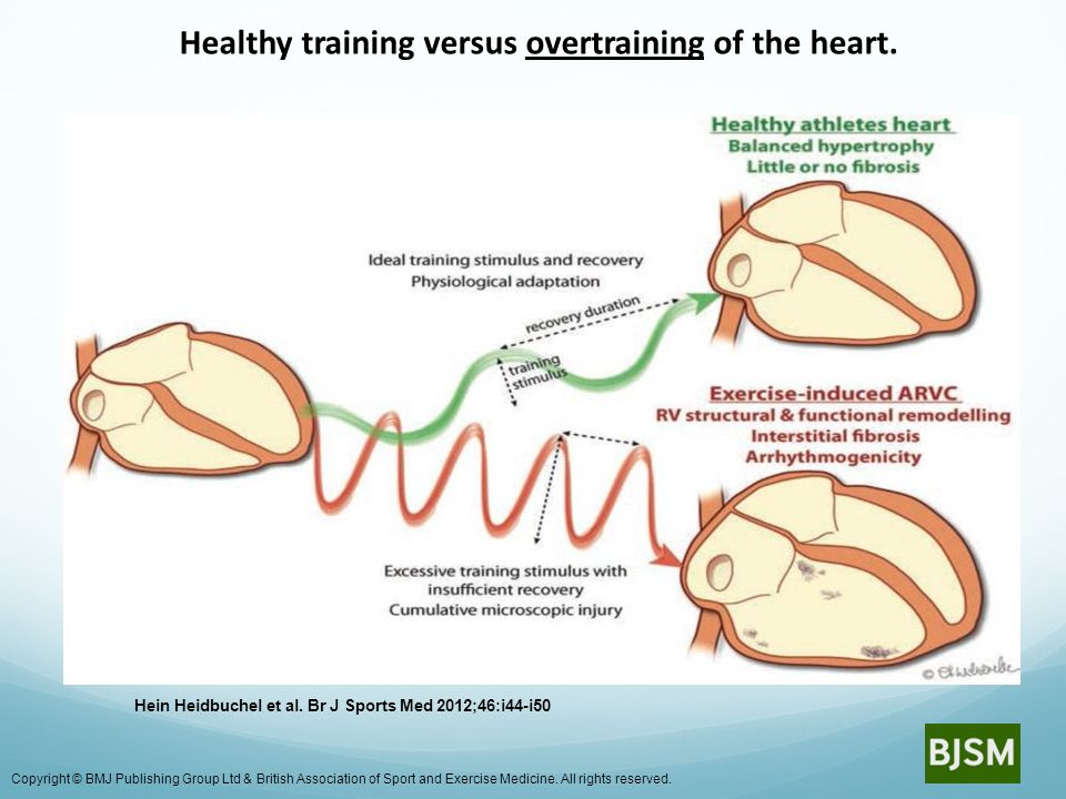 Healthy training versus overtraining of the heart.