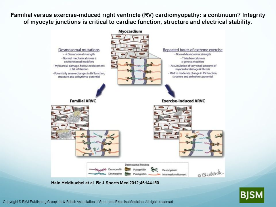 Familial versus exercise-induced right ventricle (RV) cardiomyopathy: a continuum? Integrity of myocyte junctions is critical to cardiac function, str
