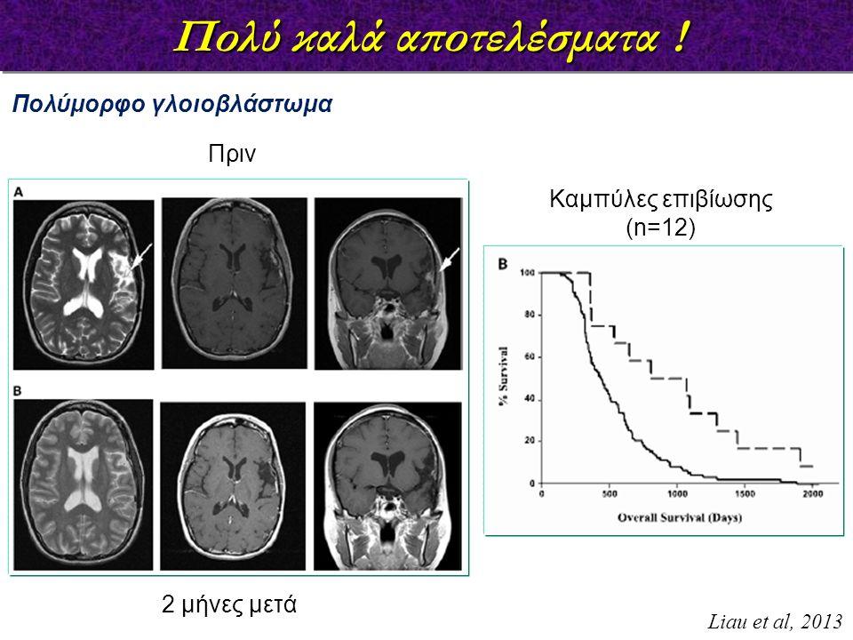 Πολύ καλά αποτελέσματα ! Πολύμορφο γλοιοβλάστωμα Πριν 2 μήνες μετά Καμπύλες επιβίωσης (n=12) Liau et al, 2013