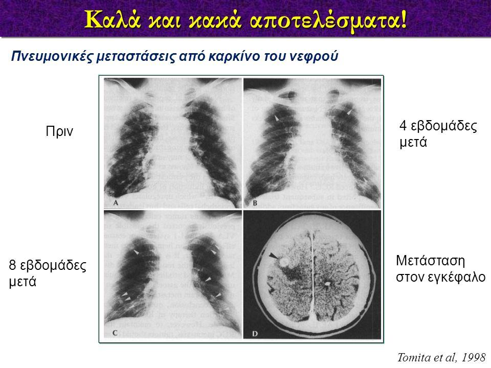Καλά και κακά αποτελέσματα! 4 εβδομάδες μετά Πνευμονικές μεταστάσεις από καρκίνο του νεφρού Tomita et al, 1998 Πριν 8 εβδομάδες μετά Μετάσταση στον εγ