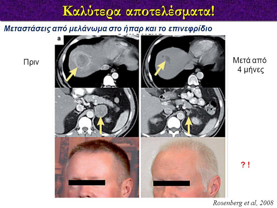 Καλύτερα αποτελέσματα! Rosenberg et al, 2008 Μεταστάσεις από μελάνωμα στο ήπαρ και το επινεφρίδιο Πριν Μετά από 4 μήνες ? !