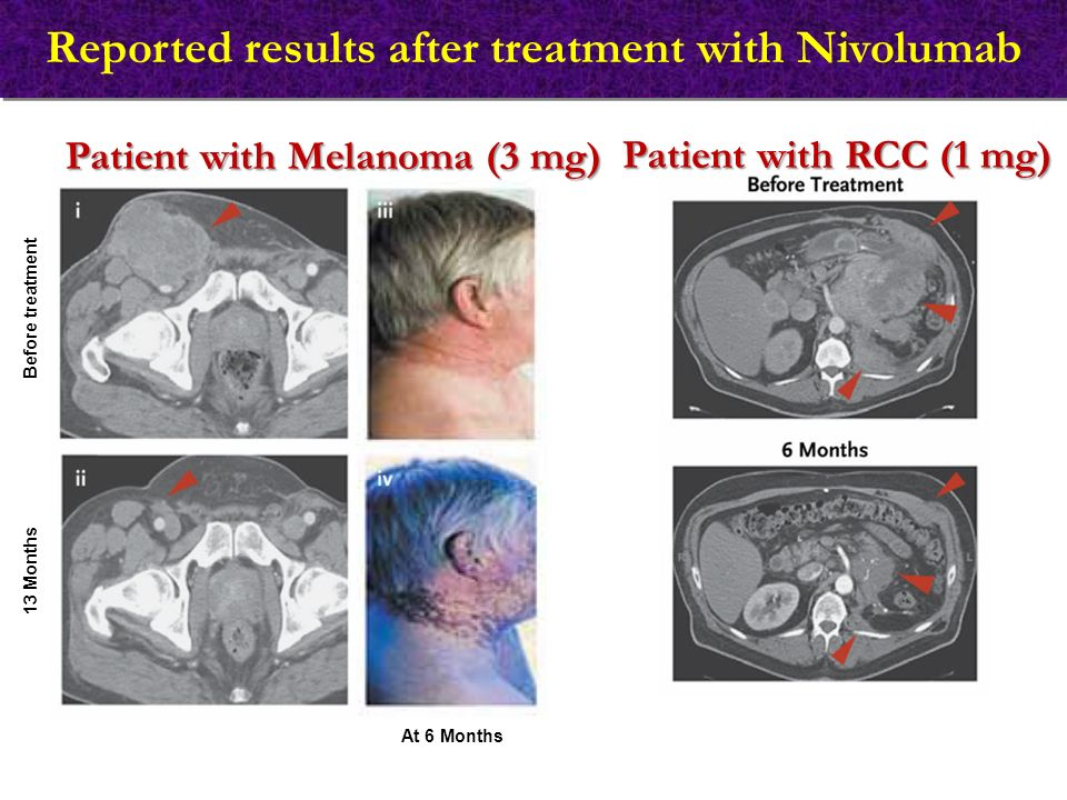 Reported results after treatment with Nivolumab Patient with RCC (1 mg) Patient with Melanoma (3 mg) Before treatment 13 Months At 6 Months