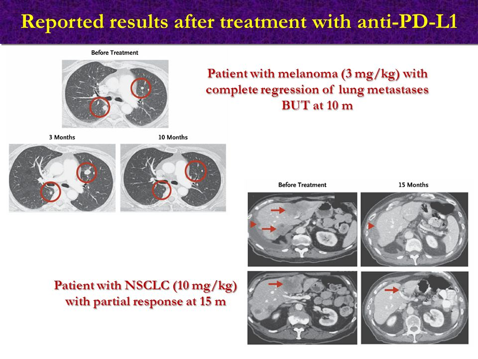 Reported results after treatment with anti-PD-L1 Patient with melanoma (3 mg/kg) with complete regression of lung metastases BUT at 10 m Patient with